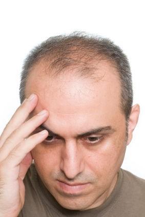 Frisuren für männer mit wenig haaren